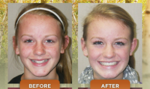 Get_Braces_Off_Sooner