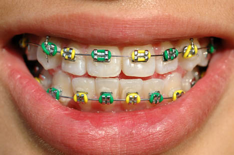 Your Braces Rubber Band Color What It Says About You Horner Barrow